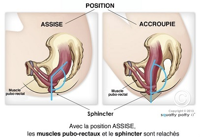 Position Toilettes Colon Ménopause Constipation