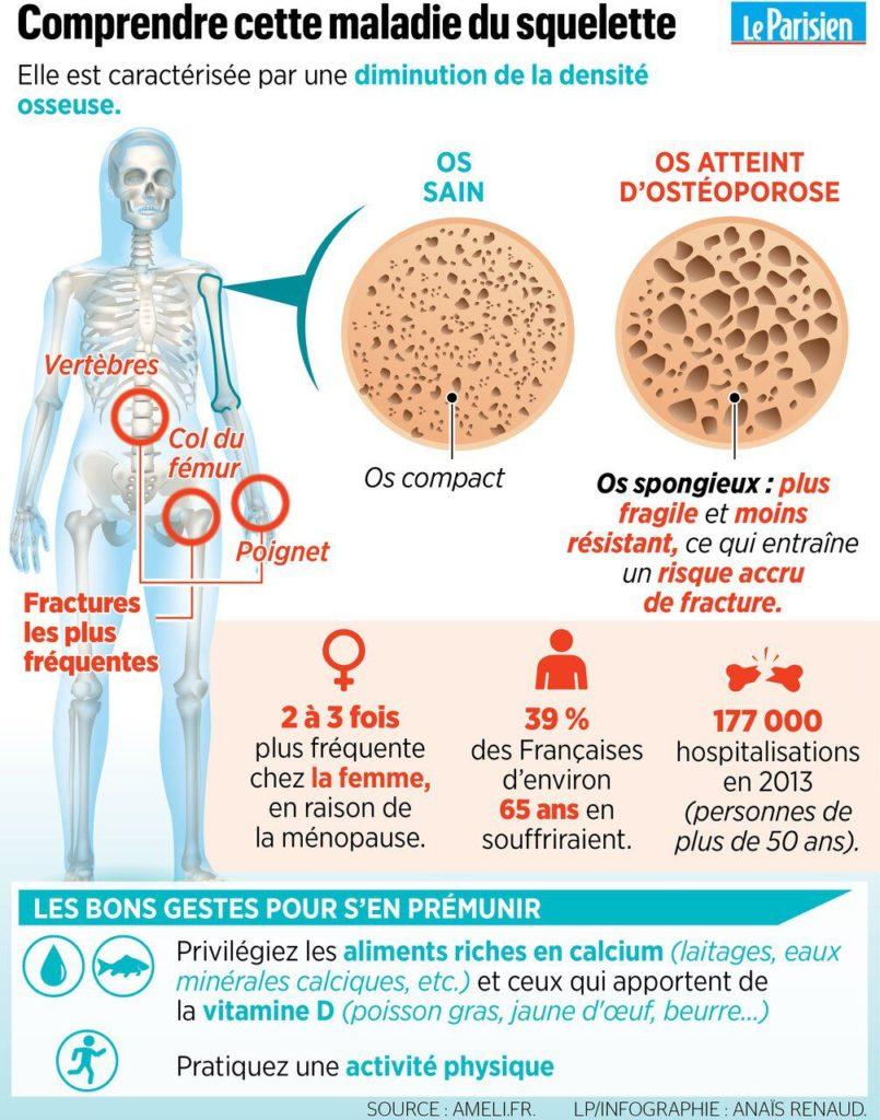 Ostéoporose Infographie Ménopause Leparisien