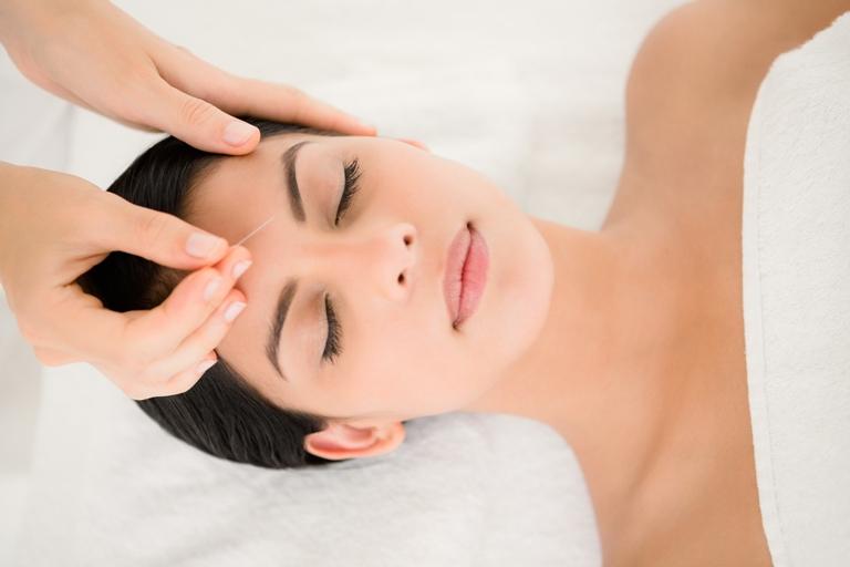 L'acupuncture réduit les bouffées de chaleur