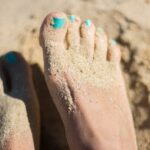 Hallux valgus ou oignon de pied