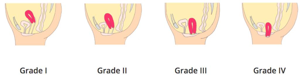 Grade de descente d'organe prolapsus