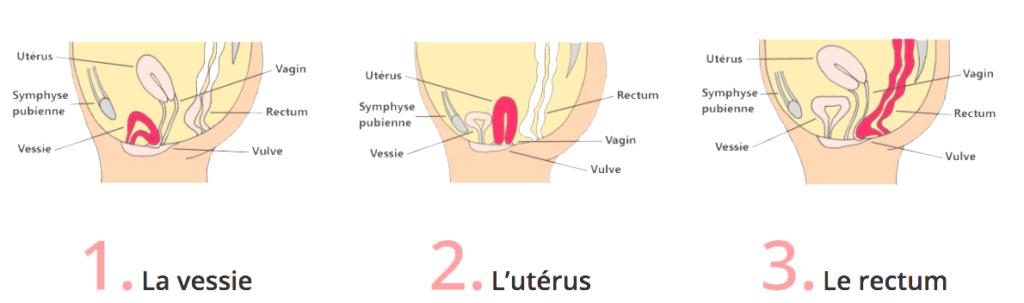 Type de descente d'organe Prolapsus