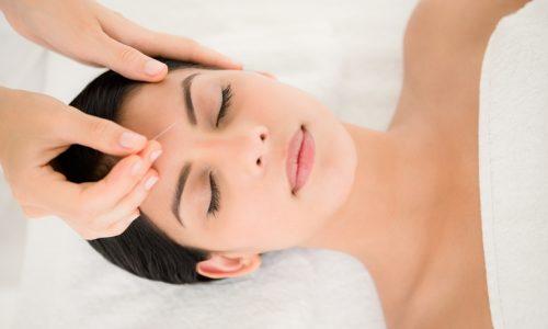 acupuncture réduit les bouffées de chaleur lors de la ménopause