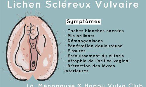 Lichen Scléreux Vulvaire Menopause